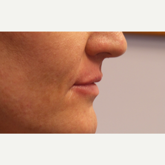 45-54 year old woman treated with Lip Augmentation after 3675143