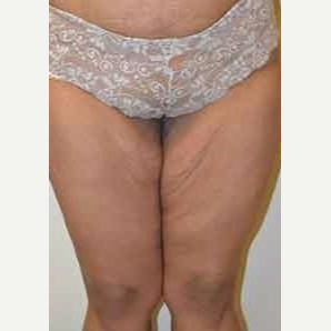 45-54 year old woman treated with Thigh Lift before 3482902