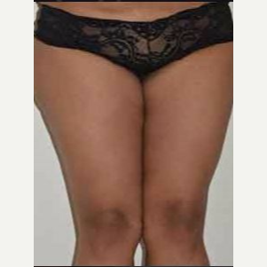 45-54 year old woman treated with Thigh Lift after 3482902