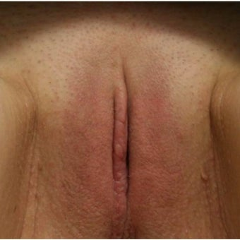 25-34 year old woman treated with Labiaplasty after 2245910