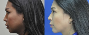 36 year old female treated for weak chin, double chin, and excess buccal fat before 999521