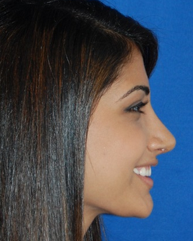 Teenage Rhinoplasty Before and Afters  after 782420