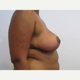 28 year old woman treated with anchor incision Breast Reduction after 2625983