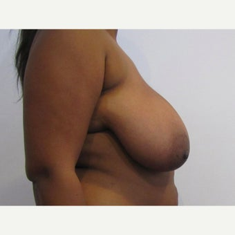 28 year old woman treated with anchor incision Breast Reduction before 2625983