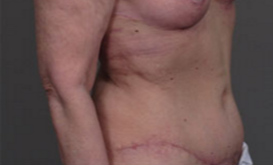 55-64 year old woman treated with Tummy Tuck after 3282402