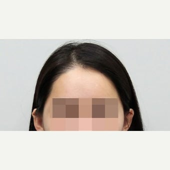 18-24 year old woman treated with Forehead Reduction after 2006861