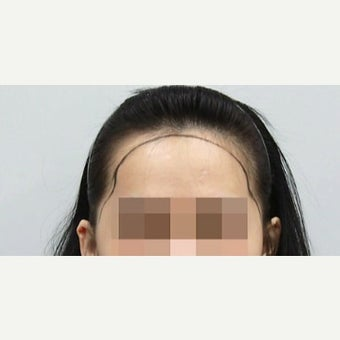 18-24 year old woman treated with Forehead Reduction before 2006861