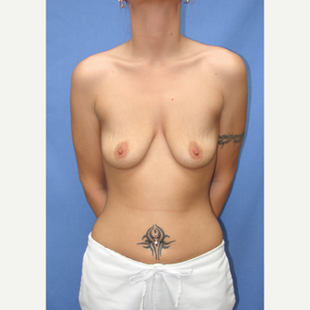 25-34 year old woman treated with Breast Implants before 3090536