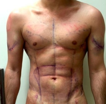 25-34 year old man treated with Liposculpture after 2048185
