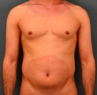25-34 year old man treated with Liposculpture before 2048185