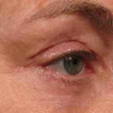 45-54 year old woman treated with Ultherapy after 1731955