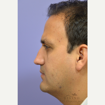 35-44 year old man treated with Revision Rhinoplasty before 3421783