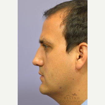 35-44 year old man treated with Revision Rhinoplasty after 3421783