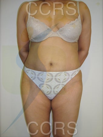 VASER lipo with Mini TT, 35 yrs. old female after 636139