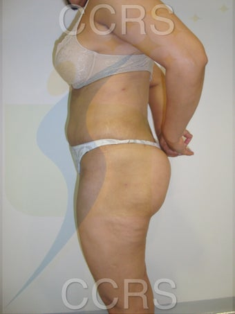 VASER lipo with Mini TT, 35 yrs. old female 636139