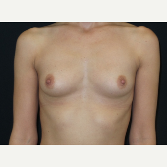 25-34 year old woman treated with Breast Implants before 3650892