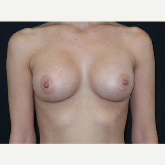 25-34 year old woman treated with Breast Implants after 3650892