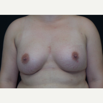 25-34 year old woman treated with Breast Augmentation after 3182005