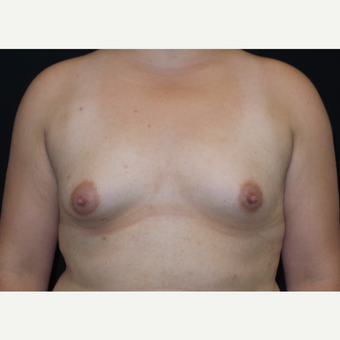 25-34 year old woman treated with Breast Augmentation before 3182005