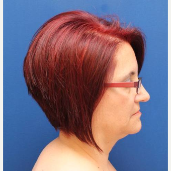 57 year old female, SMAS plication facelift before 3814724