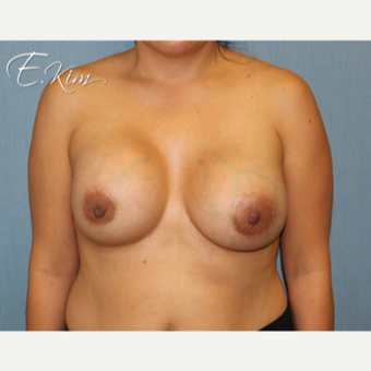 25-34 year old woman treated with Breast Implant Revision before 3102539