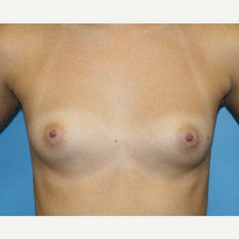 22 year old woman treated with Breast Augmentation before 3486724