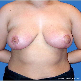 Breast Reduction after 3604028
