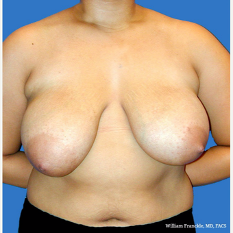 Breast Reduction before 3604028