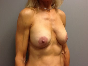 51 year old woman treated with Breast Lift with Implants 2234891