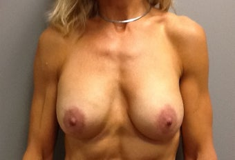 51 year old woman treated with Breast Lift with Implants after 2234891