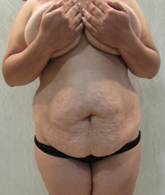 35-44 year old woman treated with Tummy Tuck before 2088728