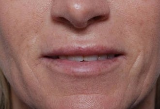Woman seeking permanent lip augmentation after 1287683