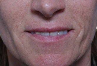 Woman seeking permanent lip augmentation before 1287683