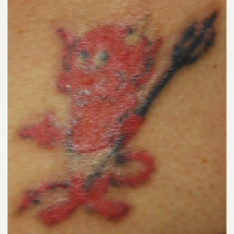 42 year old Woman Treated with PicoSure 532nm Laser for Tattoo Removal before 3137806