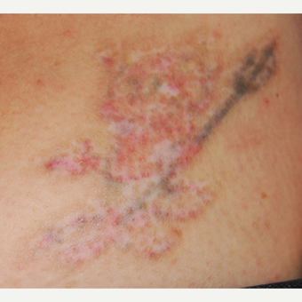 42 year old Woman Treated with PicoSure 532nm Laser for Tattoo Removal after 3137806