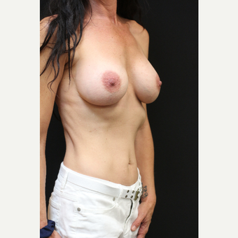 42 year old woman treated with Mentor Breast Implants before 3070987