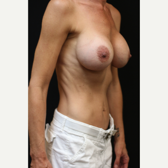 42 year old woman treated with Mentor Breast Implants after 3070987