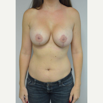 25-34 year old woman treated with Breast Lift with Implants after 3481814