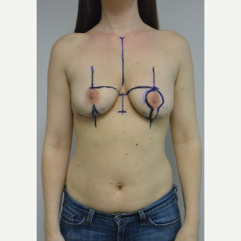 25-34 year old woman treated with Breast Lift with Implants before 3481814