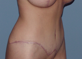 Abdominoplasty (tummy tuck) after 845758