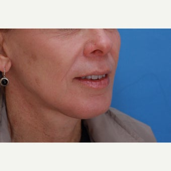 45-54 year old woman treated with Lip Lift, Skin Resurfacing and Facelift after 1810145
