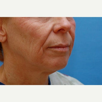 45-54 year old woman treated with Lip Lift, Skin Resurfacing and Facelift before 1810145