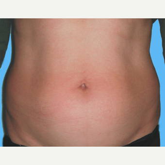 Liposuction before 3810418