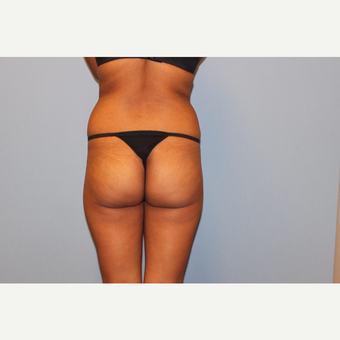 25-34 year old woman treated with Brazilian Butt Lift before 3565707