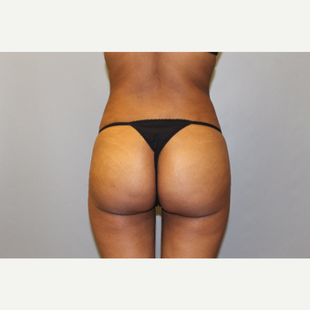 25-34 year old woman treated with Brazilian Butt Lift after 3565707