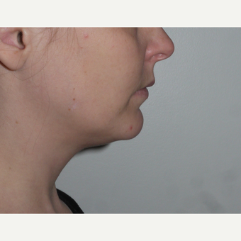 Young woman treated with Kybella, nonsurgical neck fat reduction before 3001793