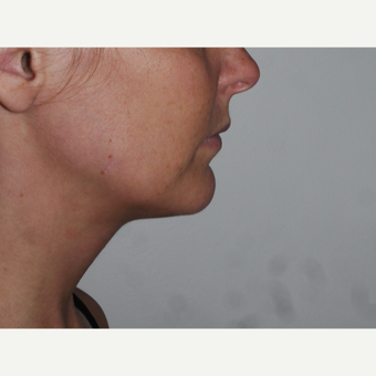 Young woman treated with Kybella, nonsurgical neck fat reduction after 3001793