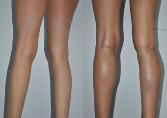 Calf Implants before 1111929