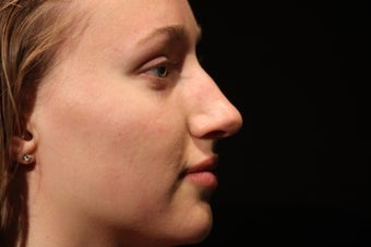 20 Year Old Female Rhinoplasty Surgery before 1088974
