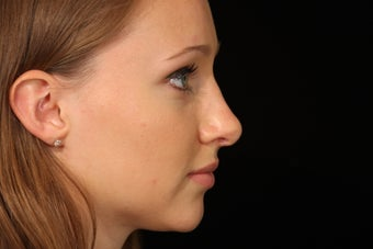 20 Year Old Female Rhinoplasty Surgery after 1088974